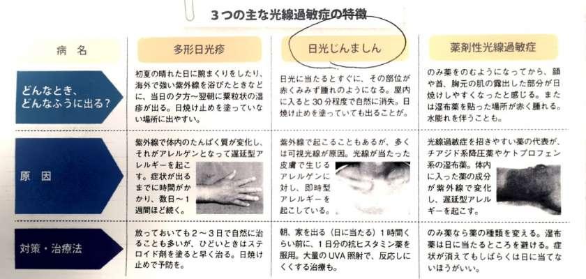 光線過敏症の主な症状例